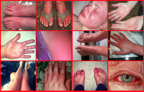 photo collage of burning hands, faces, and feet