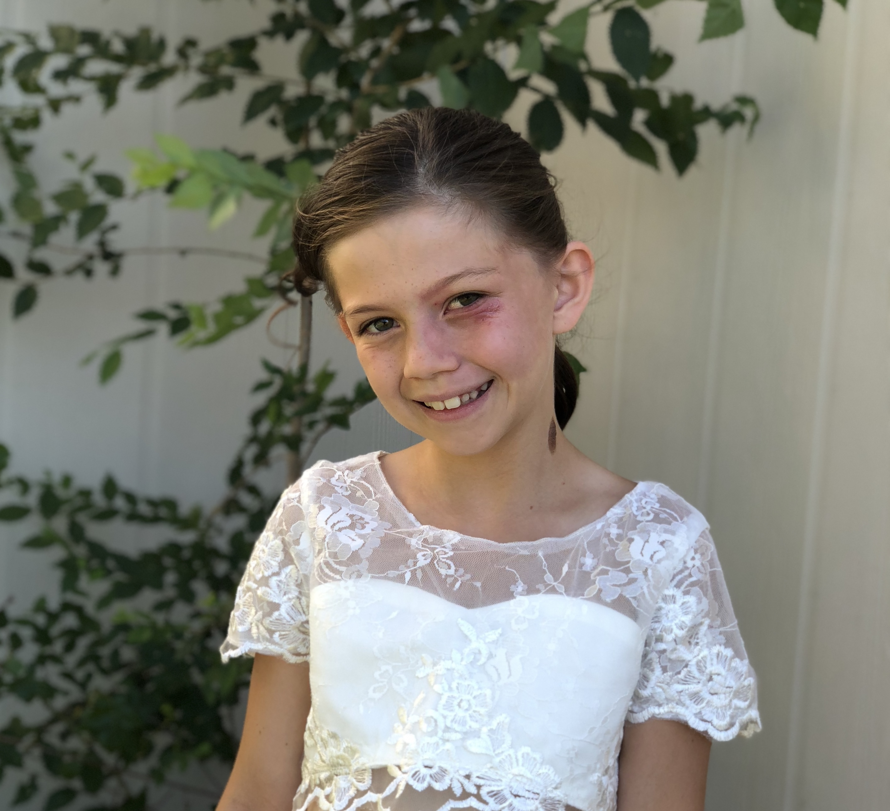 A picture of a child smiling at the camera, standing outside, showing the birthmark on her left cheek.