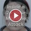 Inside a 24-Hour Migraine Attack