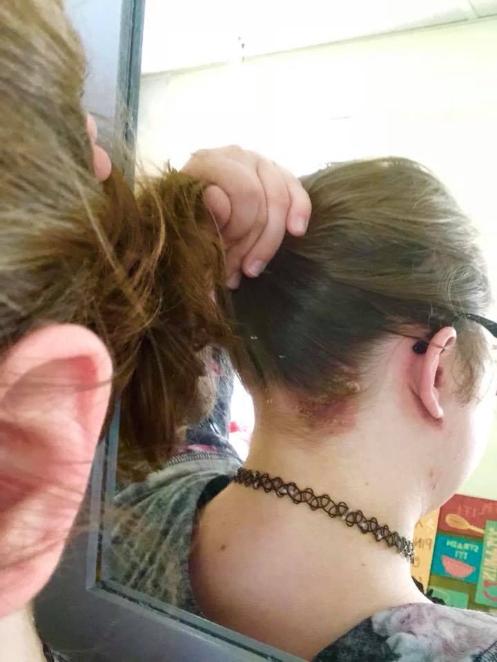 psoriasis on a woman's scalp and ear