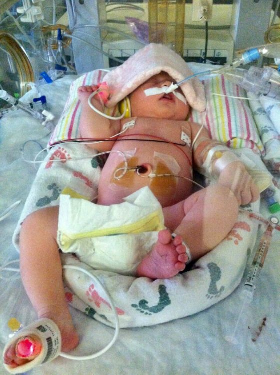 Baby in NICU hooked up to wires and machines