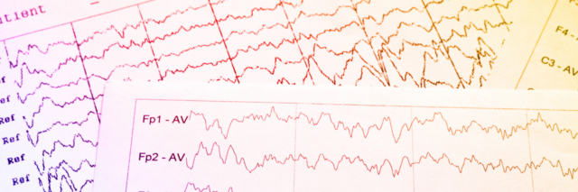 Two pages of EEG data