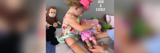 Little girl wearing compression sock and looking at doll wearing matching sock