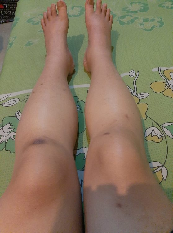Swollen legs with bruises and cuts on them