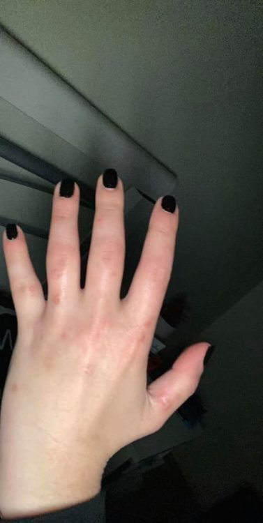 A swollen hand with black nail polish on the fingers