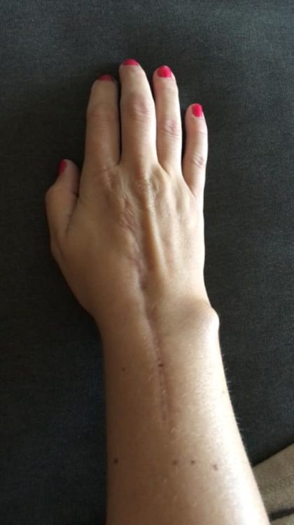 A woman's fused wrist is visible in this photo