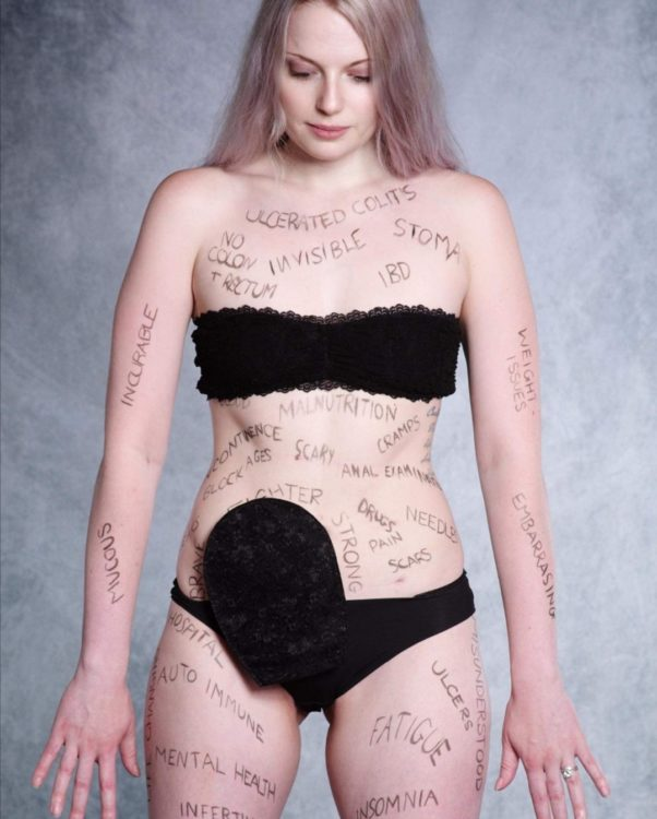 Woman with writing on her body, revealing her invisible illnesses.